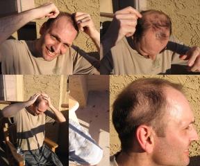 men_can_stop_hair_loss_2