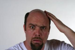 men_can_stop_hair_loss_1