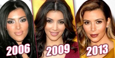 Kim Kardashian and Plastic Surgery Obsessions